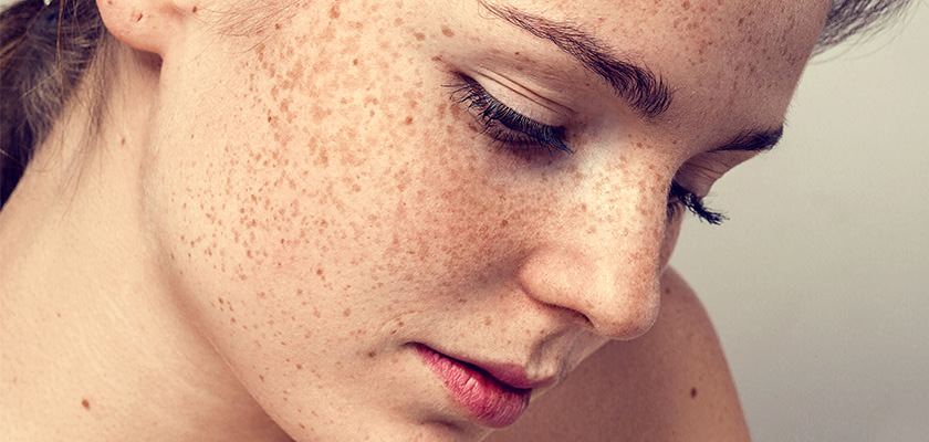 Laser Freckle Treatment Cosmetic Laser Solutions